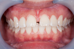 Can You Ignore Dental Gaps?