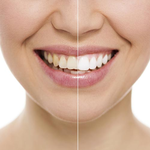Teeth Whitening at Timothy H. Kindt, DDS