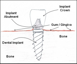 Types of Implants That Can Restore a Lost Tooth